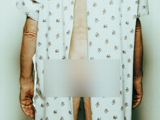 privacy in germany photo of man with hospital gown